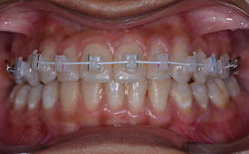 best orthodontist in Mumbai