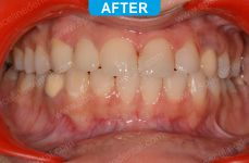 Cosmetic Dentistry - 2-2