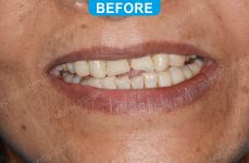 Cosmetic Dentistry - 3-1