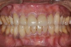 Cosmetic Dentistry - 3-4