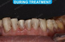 Cosmetic Dentistry - 4-2
