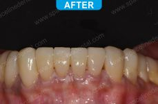 Cosmetic Dentistry - 4-3