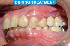 Implants - 5-4