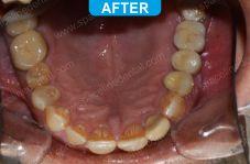 Implants - 5-6