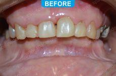 Laser Dentistry 2-1
