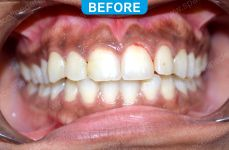 Laser Dentistry 3-1