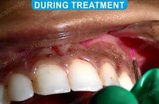 Laser Dentistry 3-2