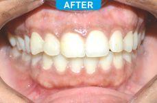 Laser Dentistry 3-3