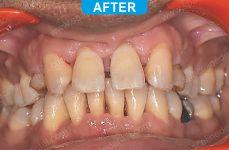 Laser Dentistry 4-3