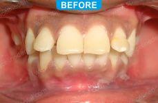 Orthodontics -1-1