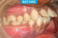 Orthodontics -1-2