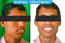 Orthodontics -1-3