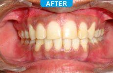 Orthodontics -1-5
