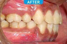 Orthodontics -1-6