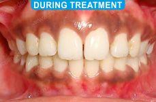 Orthodontics -2-2