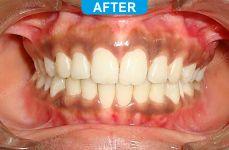 Orthodontics -2-3