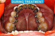 Orthodontics -3-3