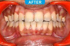 Orthodontics -3-5