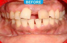 Orthodontics -4-1
