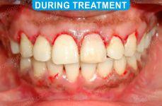 Orthodontics -4-4
