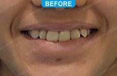 Orthodontics -5-3