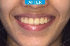 Orthodontics -5-6