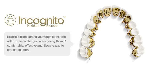 incognito-braces-banner