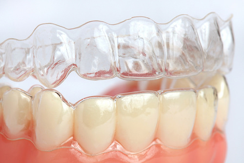 invisalign-clear-braces-dentist-columbus-ohio